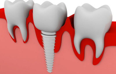 denti fissi